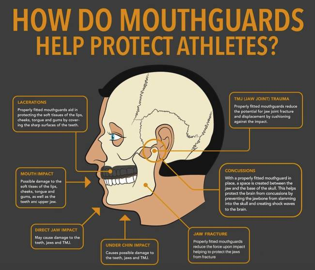 Diagram of cross section of a mans head explaining how mouth guards protect athletes.